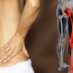 Sciatica – What is it and how do we treat it?
